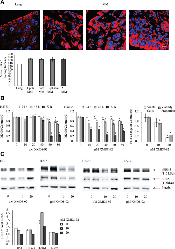 ERK5 inhibitor XMD8-92 is cytotoxic to human mesothelioma cells and inhibits constitutive ERK5 phosphorylation.