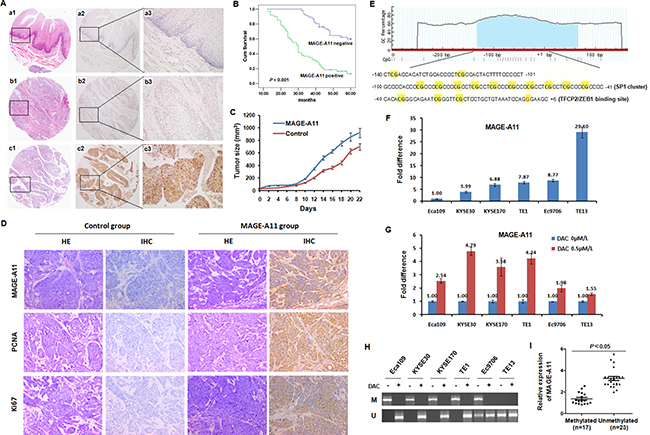 MAGE-A11 promotes ESCC growth and its expression is associated with promoter methylation.