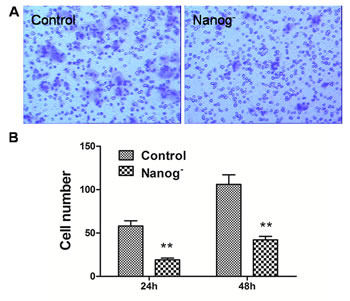 Transwell assay of the Hela cells with/without