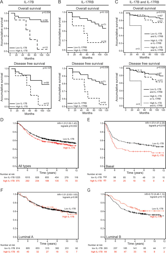 IL-17B/IL-17RB overexpression correlates with poor clinical outcome in patients with breast cancer.