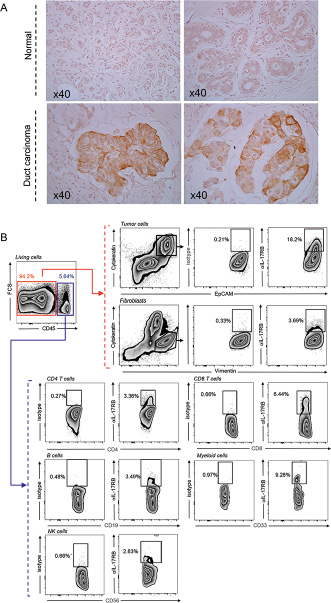 Expression of IL-17B and IL-17RB in breast tumors.