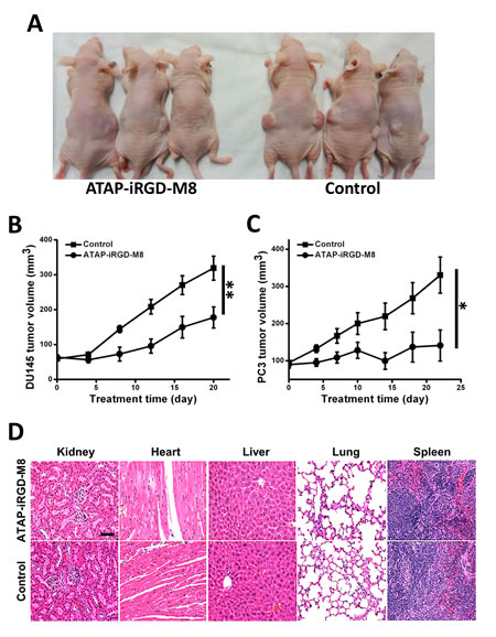 ATAP-iRGD-M8 suppresses prostate tumor growth with no toxic effects in xenograft model.