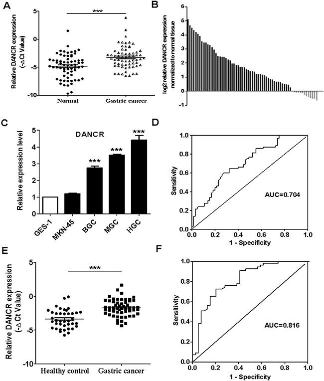 The relative expression levels of DANCR in the tumor tissues and serum samples of gastric cancer patients and gastric cancer cell lines.
