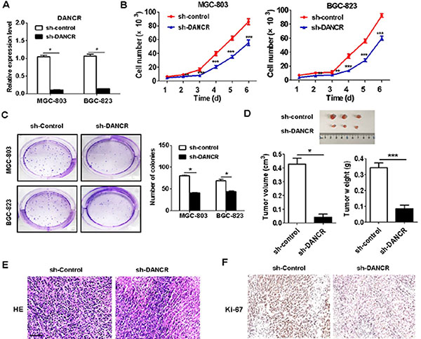 DANCR knockdown inhibits the proliferation of gastric cancer cells in vitro and in vivo.