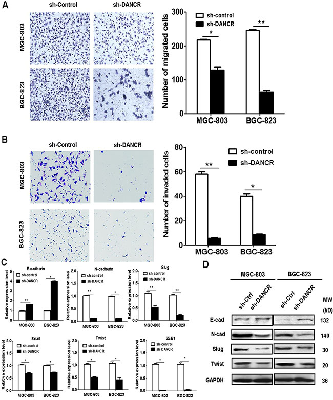 DANCR knockdown inhibits the migration and invasion of gastric cancer cells.