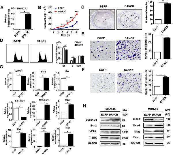 DANCR overexpression promotes the proliferation, migration, and invasion of gastric cancer cells.