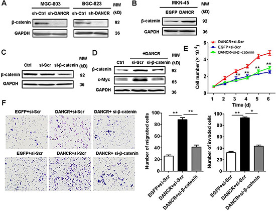 DANCR activates β-catenin pathway to promote gastric cancer progression.