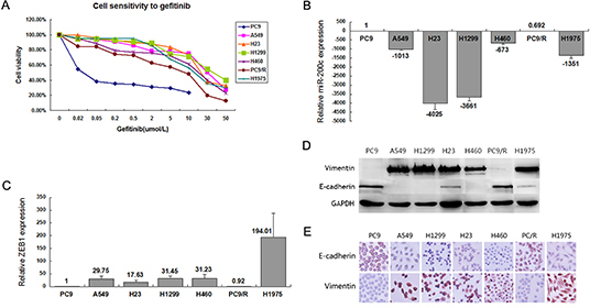 Phenotype and sensitivity to gefitinib in 7 NSCLC cell lines.