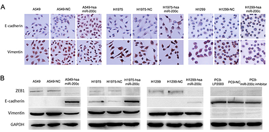 Over expression of miR-200c can restore epithelial phenotype in NSCLC.