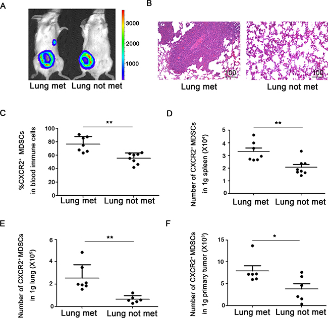 CXCR2+ MDSCs are involved in breast cancer lung metastasis.
