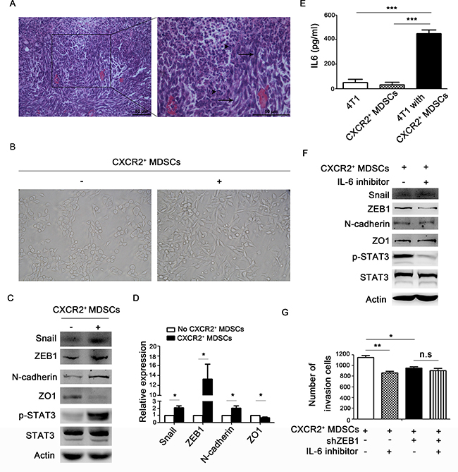 CXCR2+ MDSCs induce breast cancer cells EMT.