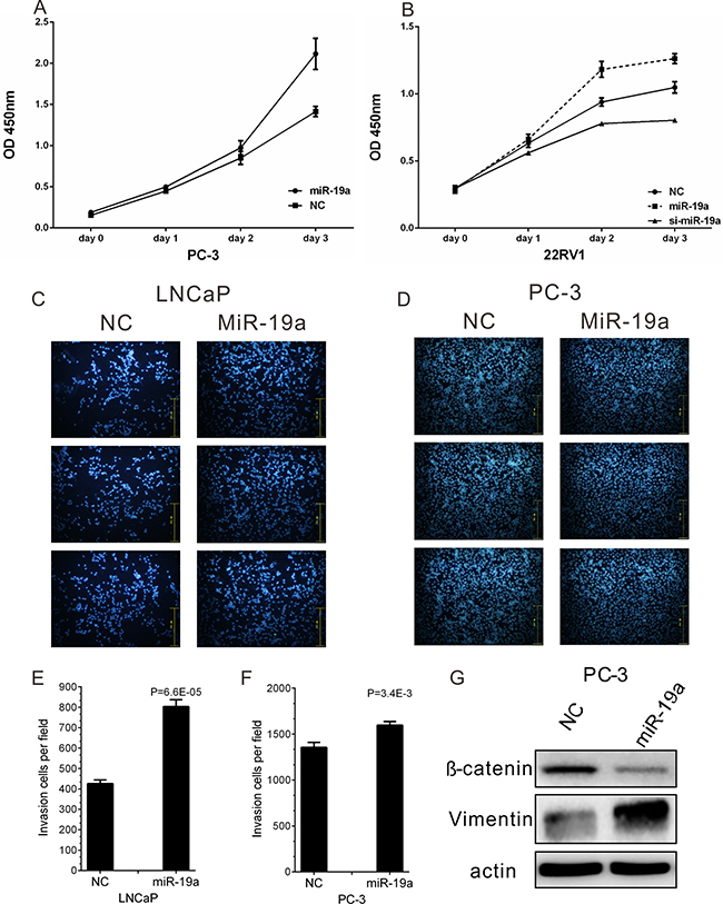 MiR-19a promotes cell proliferation and migration of PCa cells.