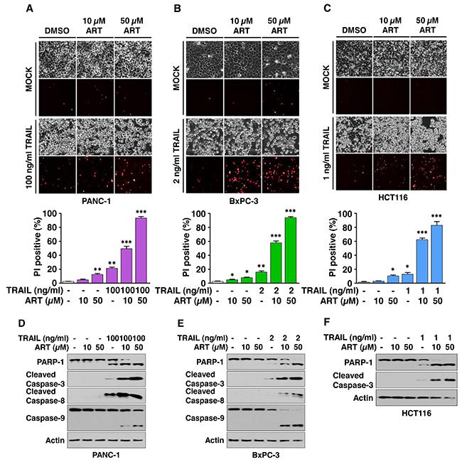 Artesunate (ART) promotes TRAIL-induced apoptosis.