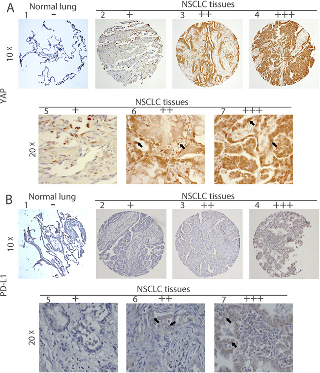 Immunohistochemistry of YAP and PD-L1 in human NSCLC tissues.