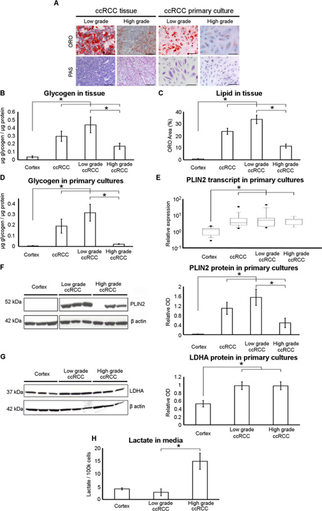 Neutral lipid and glycogen storage is decreased and lactate production increased in high-grade ccRCC primary cultures.