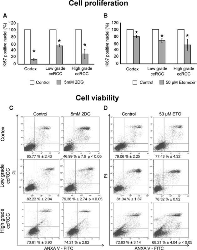 Cell proliferation and viability of low- and high-grade ccRCC and normal cortex primary cultures treated with 2DG or Etomoxir.