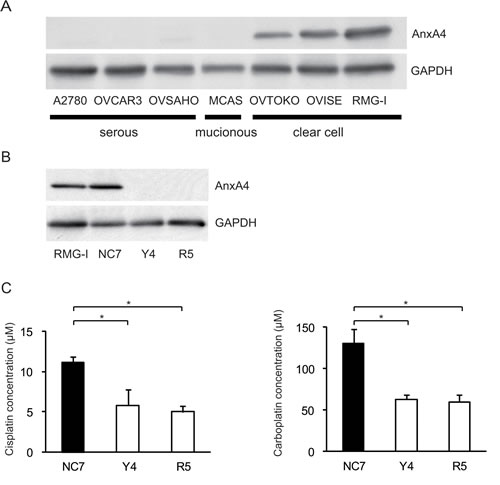 Fig.1: Knockdown of ANXA4 expression attenuates platinum resistance.