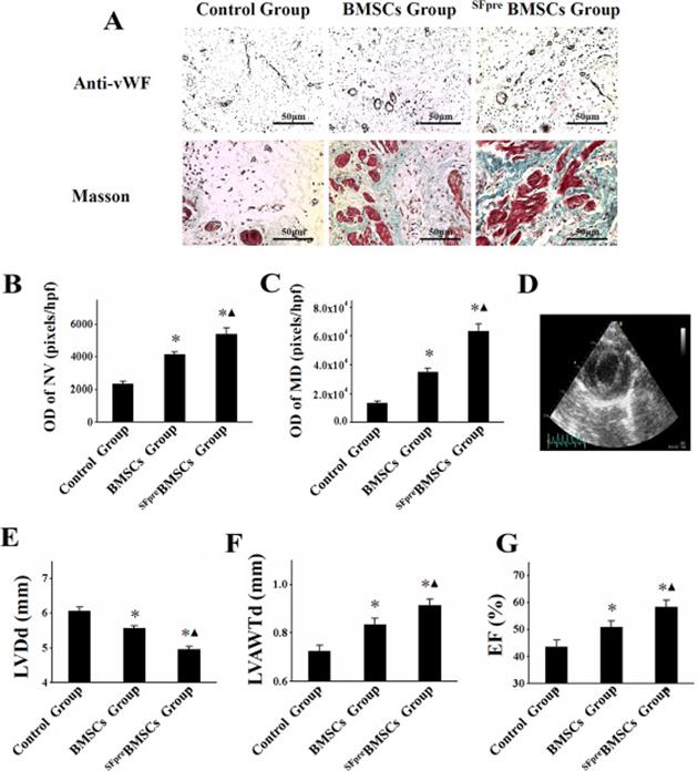In vivo evaluation of angiogenesis, myocardium density, and LV function.