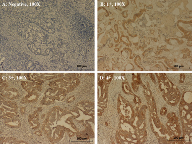 Immunohistochemical staining of EGFR in CRC.