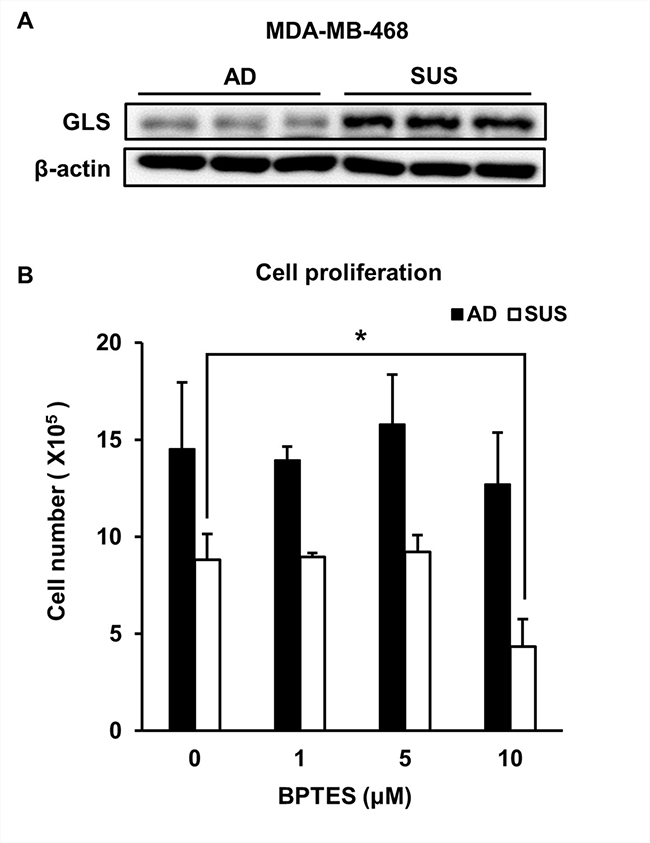 Suspension cells show an increase in GLS and are susceptible to treatment with GLS inhibitor.