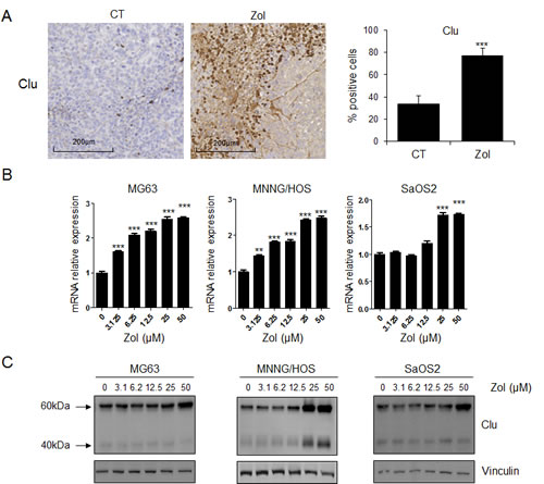 ZOL induces CLU expression in osteosarcoma in vitro and in vivo.