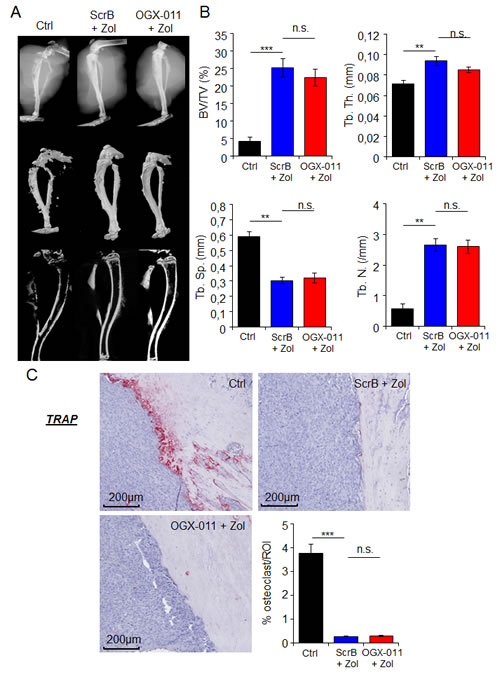 Effect of combination treatment on bone prevention in MNNG/HOS osteosarcoma xenograft model.