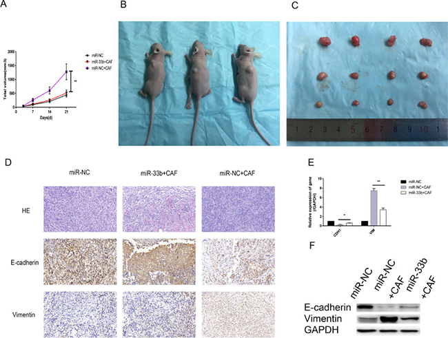 miR-33b inhibited CAF-induced lung cancer cell growth and EMT in vivo.