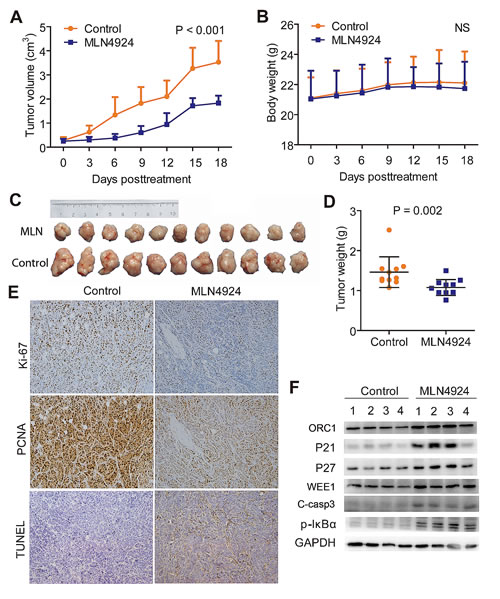 MLN4924 suppressed the growth of subcutaneous xenograft model of cholangiocarcinoma.