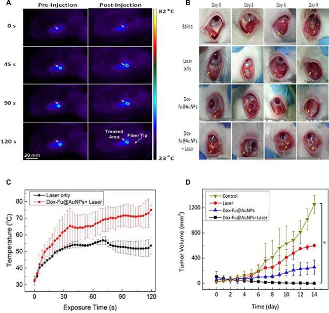 Chemo-photothermal effects of Dox-Fu@AuNPs in rabbit eye tumor model.