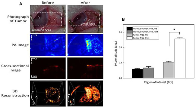 Photoacoustic imaging (PAI) of rabbit eye tumors injected with Dox-Fu@AuNPs.