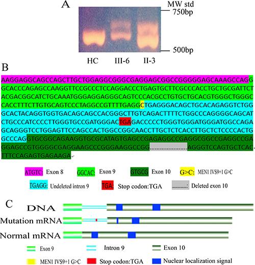 Functional analysis of MEN1 IVS9 + 1G > C mutation.