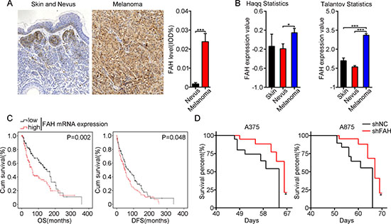 FAH expression is inversely associated with survival in both melanoma patients and melanoma-bearing mice.
