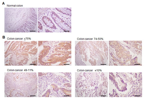 Expression of TM4SF5 in colon cancer tissues.