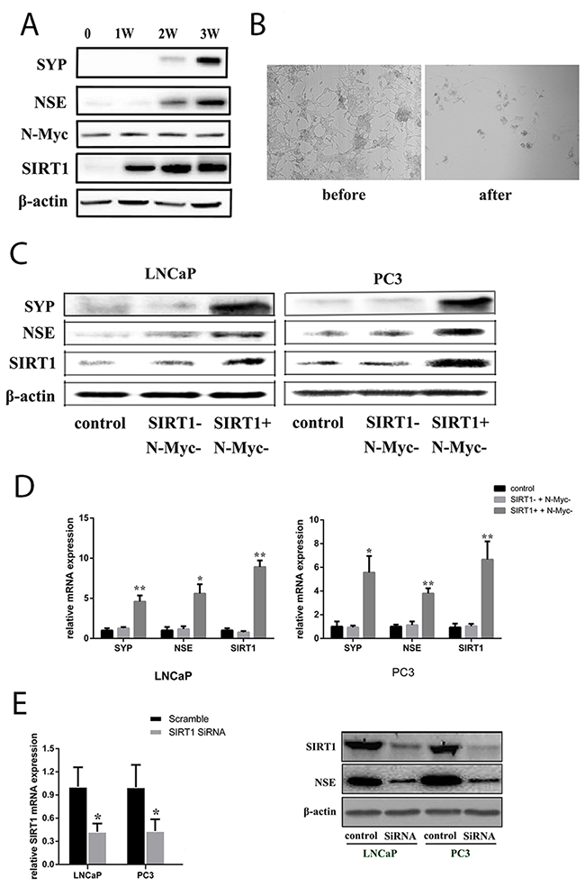SIRT1 upregulation contributed to NED of Pca cells under ADT conditions.