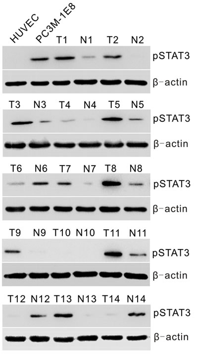Analyses of STAT3 activation in prostate cancer cells and human primary prostate tumors.