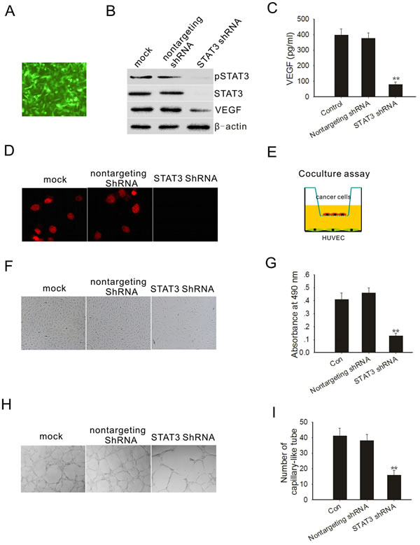 STAT3 knockdown decreased PC3M-1E8 cells mediated angiogenesis.