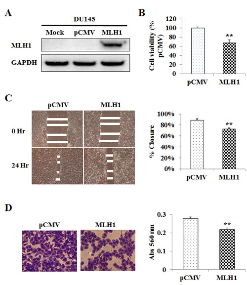 Re-expression and tumor suppressive effect of MLH1 on DU145 cells.
