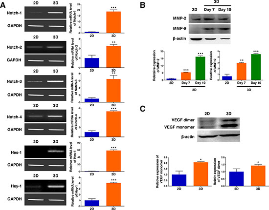 3D microenvironment in AmCA hydrogels enhances the expression of tumor aggressiveness factors in 3D lymphoma spheroids compared to their 2D cultures.