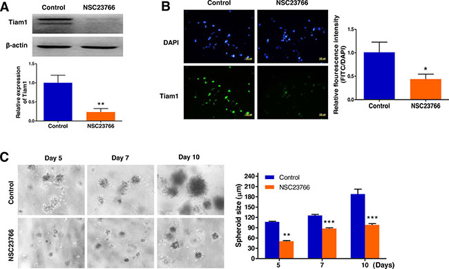 Repression of Tiam1 expression prevents cell growth in 3D lymphoma spheroids.