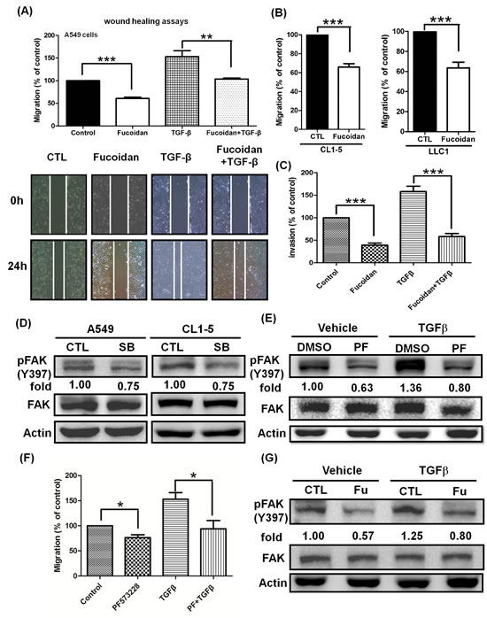 Fucoidan inhibits the phosphorylation of FAK and suppresses the TGFβ-dependent migratory and invasive properties of lung cancer cells.