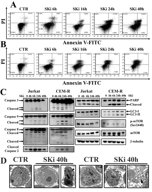 SKi treatment induces apoptosis and autophagy in Jurkat and CEM-R cells.