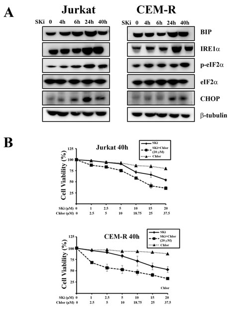 SKi induces autophagy as a consequence of ER stress/UPR activation in Jurkat and CEM-R cells.