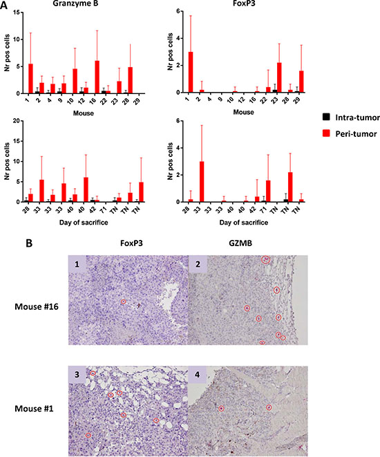 Number of Granzyme B+ and FoxP3+ cells infiltrating tumors.