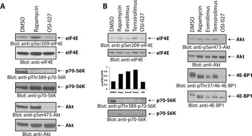 Rapalogs increase phosphorylation of eIF4E on Ser-209 in medulloblastoma cells.
