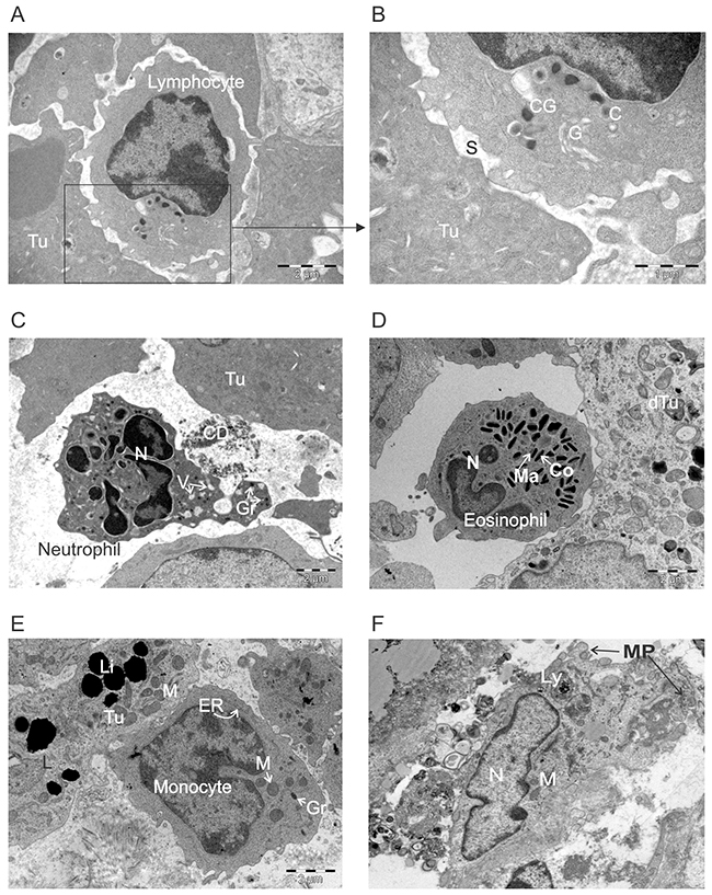 Ultrastructural appearance of leukocytes infiltrating ACTIV-treated tumors.