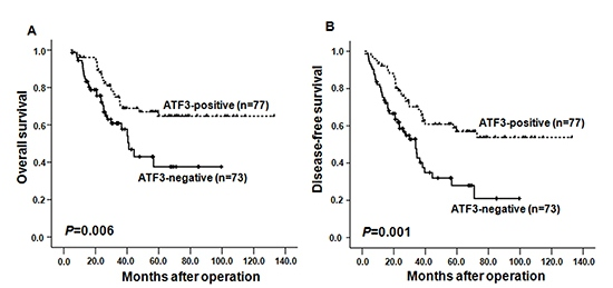 Kaplan-Meier curves depicting overall survival (OS, A) and the disease-free survival (DFS, B) according to expression patterns of ATF3 in ESCC samples.