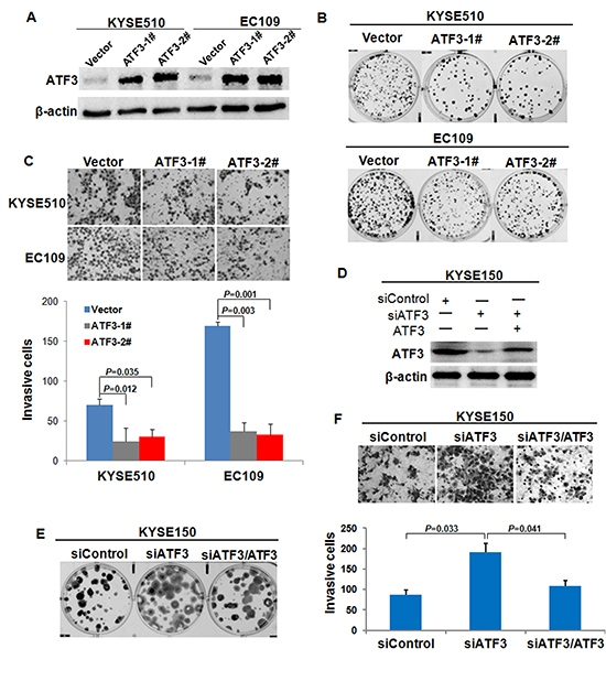 Effect of ATF3 expression on cell growth and invasion.