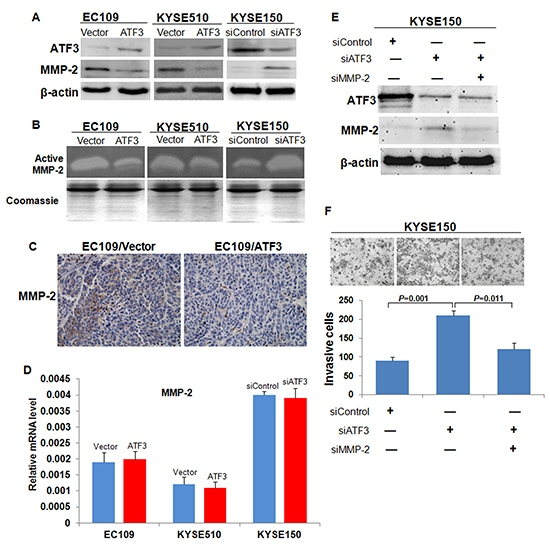 Expression and activity of MMP-2 in the ATF3 altered-expression ESCC cells.