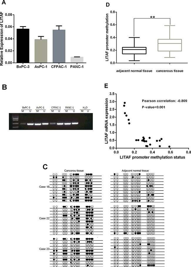 Transcription of LITAF is regulated by promoter methylation.