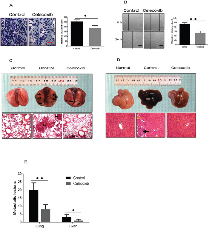 Celecoxib attenuates breast cancer cell metastasis.